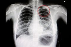 Chext x-ray with marker