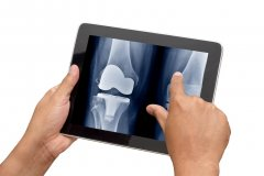 Knee x-ray on a tablet screen